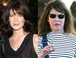 Актеры, пострадавшие от пластических операций